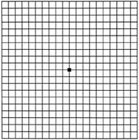 Amsler grid normally looks like