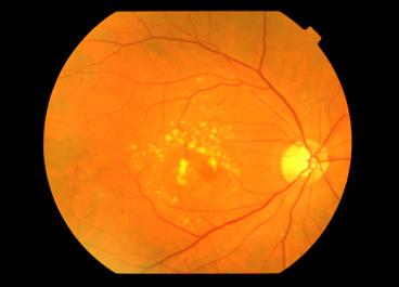 Macular Degeneration Miranda Dry Amd Wollongong Fluorescein Angiogram Kogarah